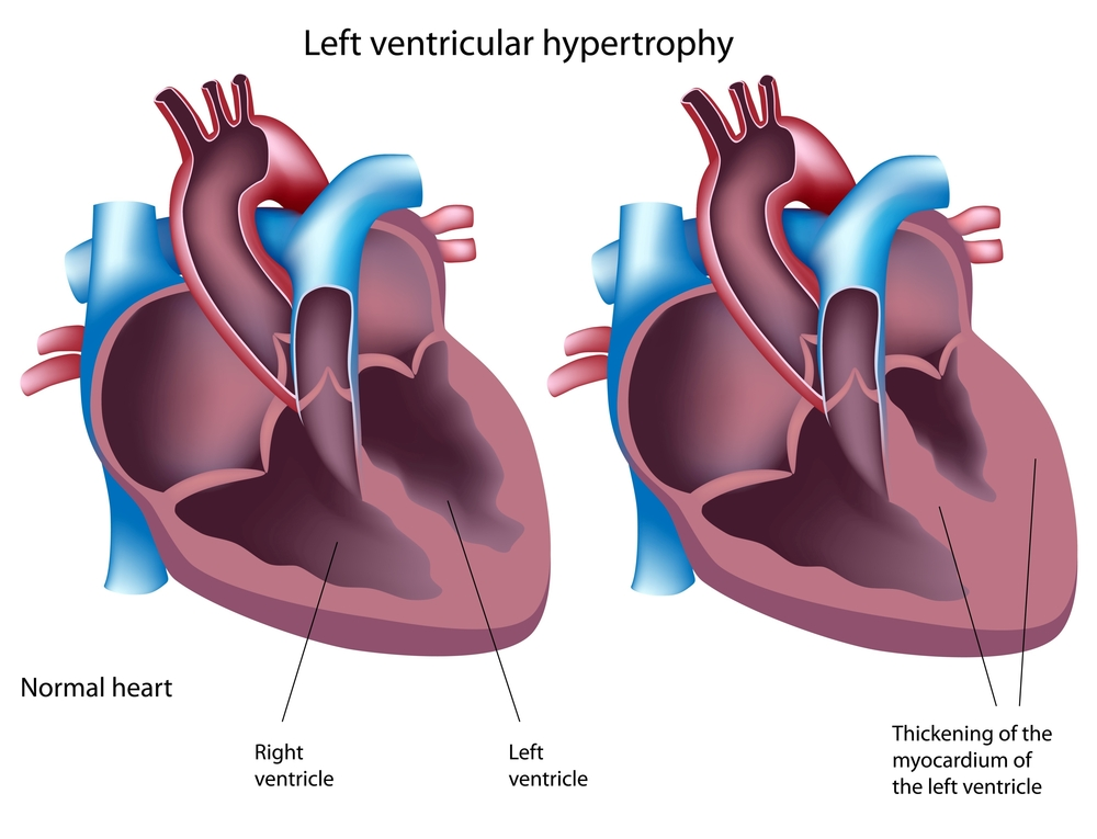 hypertrophic cardiomyopathy (hcm) - australian genetic heart, Skeleton